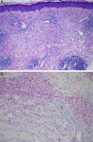Hematoxylin-eosin, original magnification×40: dense interstitial lymphohistiocytic inflammatory infiltrate (A). Staining with alcian blue×100: mucin deposit between collagen bands and throughout the dermis (B).