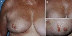 A, Pearly white macules on the right hemithorax and outer quadrants of the right breast. A serosanguineous blister can also be observed beside the right areola. B, Detail of the pearly white macules on the hemithorax. C, Higher magnification of the serosanguineous blister.