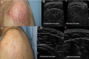A, Poorly delimited erythematous plaque. B, Ultrasound images showing thickening of the dermis in the affected shoulder, as compared with the unaffected shoulder. C, Resolution of the lesion after treatment. D, Ultrasound images showing the affected and unaffected shoulders after treatment.