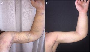 Patient at 16 years of age, before (A) and after (B) treatment of capillary and venous malformations with pulsed dye laser and multiplex neodymium-doped yttrium aluminum garnet (Nd:YAG) laser, respectively.