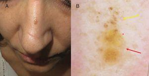 A, Papule of 4 mm on the nasal dorsum. B, Dermoscopic image showing brown globules in the upper half (yellow arrow), yellowish unstructured areas in the lower half (red arrow), and regular linear vessels (red asterisk).