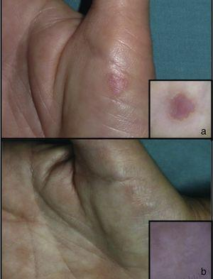 Case 1. Before (A) and after (B) treatment.