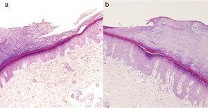 Note the sudden stair-like epidermal thinning in both patients showing a depressed, hypokeratotic epidermal area and hypogranulosis (hematoxylin-eosin, original magnification ×10).
