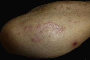 Arciform lesion on the right forearm. Erythematous 0.8-cm plaque with a central crust about 4cm from the main lesion.