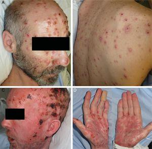 Skin lesions in Patients 1 (A, B) and 2 (C, D).