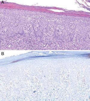 Histology of biopsy from Patient 2. A, Epidermis showing marked spongiotic changes. Predominantly histiocytic inflammatory infiltrate is evident in the superficial dermis (hematoxylin-eosin, original magnification ×100). B, Visualization of abundant spirochetes by immunostaining for Treponema pallidum (Treponema immunohistochemistry, original magnification ×100).