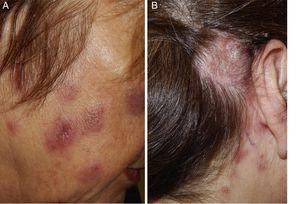 A, Succulent, erythematous-violaceous facial plaques, without surface changes. B, Brownish, desquamative, alopecic erythematous plaque located in the retroauricular area of the scalp.