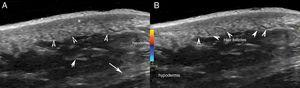 Ultrasound. A, The grey scale (longitudinal axis; right hip) showing thickening and decreased dermal echogenicity (*) with preserved hair follicles (arrow heads). B, Color Doppler (longitudinal axis; right hip) shows absence of dermal or hypodermal hypervascularization. Note the prominent fibrous septa (arrows) in the hypodermis (A and B).