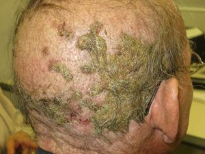 Follicular reaction on scalp caused by cetuximab (anti-EGFR agent), resembling erosive pustular dermatosis of the scalp.