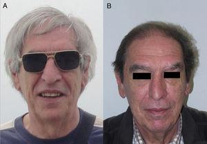 A, Patient with grey hair. B, Same patient with hair repigmentation after nivolumab (anti-PD1) treatment. Courtesy of Dr. N. Rivera.