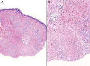 A, Hematoxylin–eosin ×1.3. B, Hematoxylin–eosin ×2.6.