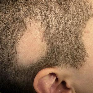 Alopecic plaque in the right temporal region with well-defined borders and a positive hair-pull test result.