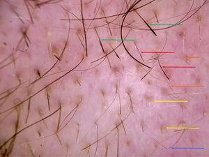 Image of the border of the alopecic plaque acquired using a DermLite II Hybrid dermatoscope (3Gen Inc., CA, USA). Red arrows, hairs with Pohl-Pinkus or monilethrix-like constrictions; green arrows, exclamation-mark hairs with a thickened distal end; yellow arrows, yellow dots; orange arrows, short vellus hairs; blue arrow, angulated hair.