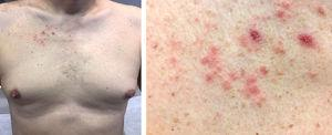 A, Erythematous and crusted papules on the chest. B, Image showing erythematous papules in greater detail.