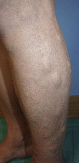 Multiple subcutaneous nodules covered by normal-colored skin on the legs.