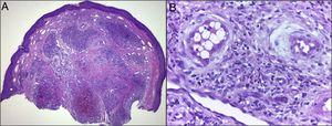 A and B), Histology in ALHE. Hematoxylin–eosin: A), ×20; B), ×400. Dermal proliferation of capillaries and blood vessels with walls of medium thickness with epithelioid endothelium and intracytoplasmic vacuoles, abundant lymphocytic and eosinophilic infiltrate surrounded by a fibrous stroma and mild epidermal hyperplasia.