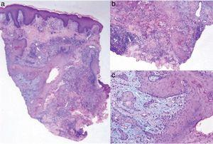 A, Epidermal hyperplasia with a pseudoepitheliomatous pattern and areas of necrosis in the dermis with a mixed inflammatory infiltrate (hematoxylin-eosin, original magnification ×4). B,C, Nests and squamous epithelium plaques in the dermis with central keratinization and discrete cellular atypia (hematoxylin-eosin, original magnification ×20).