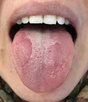 Erythematous plaques in absence of filiform papillae.