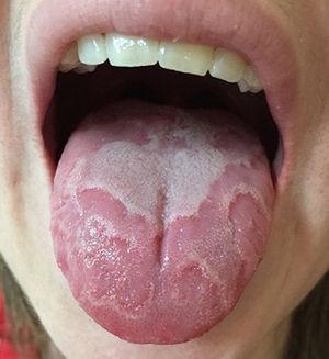 Erythematous plaques with a well-defined whitish margin on the dorsal of the tongue.