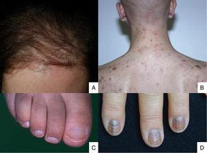 A) Post-chemotherapy alopecia is diffuse, appears in the first few weeks of treatment, and spares the hairline; B) Folliculitis after dactinomycin administration; C) Half-and-half nails; D) Muehrcke's lines with diffuse pigmentation after cyclophosphamide administration.