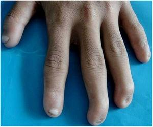 Anonychia of the ring and little finger of the left hand with flexion deformity of the middle and ring finger.