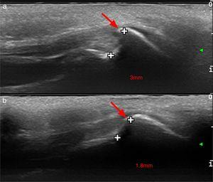 High frequency ultrasound of patients showing longitudinal scan of the occipital area. Type 3 or spine type external occipital protuberance is marked with an arrow and distance between the occipital bone and the exostosis is measured in millimeters. We can also observe the upward displacement of the adjacent musculoaponeurotic layers, constituted by the nuchal ligament, insertion fibers of the trapezius muscle and the epicranial aponeurosis.