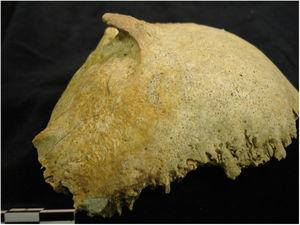 Dry skull image of occipital bone with type 3 EOP. Image kindly provided by Mr Richard Dabbs. Museum of London attribution to Bermondsey Abbey SK2722 / © Museum of London.