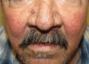 Multiple facial telangiectases on a patient with HHT.