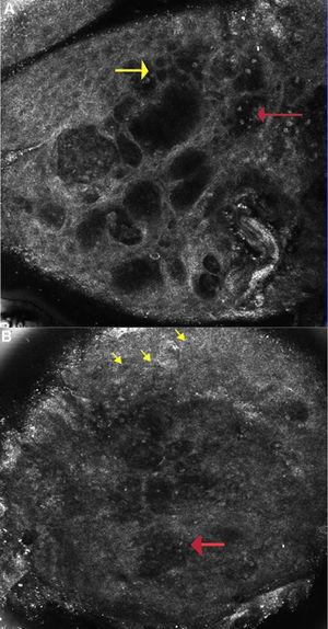 A Allergic Contact Dermatitis: Reflectance confocal microscopy image (0.5×0.5mm) at the level of the spinous layer (∼30 microns depth) shows spongiosis and exocytosis (yellow arrow) and multiple microvesicles with lymphocytes and detached keratinocytes (red arrow). Figure 2B: Irritant contact dermatitis: Reflectance confocal microscopy image (0.5×0.5mm) shows disruption of stratum corneum with detached corneocytes and early parakeratosis (yellow arrows) and confluence of microvesicles with inflammatory cells infiltration (red arrow) below.