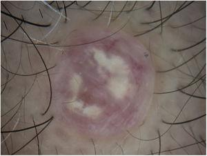 Contact dermoscopy shows that the marked vascular component has almost disappeared and that the predominant finding is whitish-gray structures on a pale pink background.