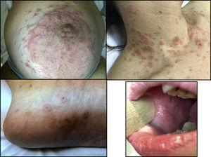 Exudative erythema multiforme-like lesions on the skin and oral erosions.