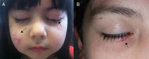 A, Girl with erythematous nodules on the right cheek and a chalazion on the left upper eyelid. B, Boy with an erythematous lesion on the lower right eyelid.