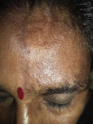 Band of thickened and indurated skin extending vertically along the forehead to the frontal scalp.