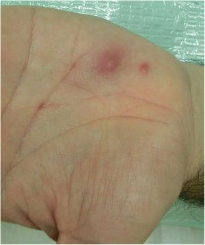 Two erythematous papules with diameters of 2 and 4mm, respectively. The larger papule shows central hyperkeratosis and a perilesional erythematous halo.