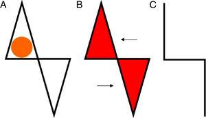 A, Defect and design of an east-west flap. B, Release and advancement of the triangular flaps. C, Closure (suture lines).