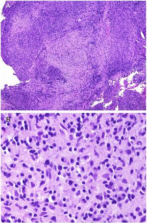 A, At low magnification, Ig4-related disease should be suspected on finding an infiltrate rich in plasmatic cells coexisting with areas of concentric fibrosis (hematoxylin and eosin [H&E] ×40). B, Infiltrate rich in plasmatic cells in the case of IgG4-related disease (H&E ×400).