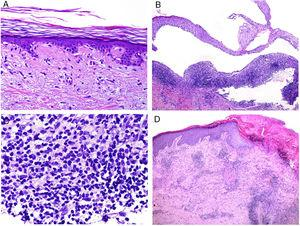 A, Numerous apoptotic figures in the basal epidermal layer (hematoxylin and eosin [H&E] ×200). The number of apoptotic keratinocytes has been correlated with lupus activity. B, Subepidermal detachment in a case of bullous lupus (H&E ×40). C, Presence of numerous polymorphonuclear cells in chronic infiltrate from a patient with bullous lupus (H&E ×400). D, Perivascular infiltrate in an ulcerated lesion corresponding to skin involvement in Kikuchi disease (H&E ×40).