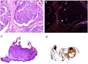 A, Sarcoid epithelioid granulomatous reaction in the dermis in a case of silica granuloma (hematoxylin and eosin [H&E] ×100). B, In the examination of sarcoid granulomas with polarized light, numerous intensely birefringent particles can be observed (H&E ×100, polarized light). C, Typical example of trichilemmoma (H&E ×20); even at this magnification, characteristic cytoplasmic cellular vacuolizations can be observed. D, Preservation of PTEN expression in a sporadic trichilemmoma, not associated with Cowden syndrome (PTEN×30).