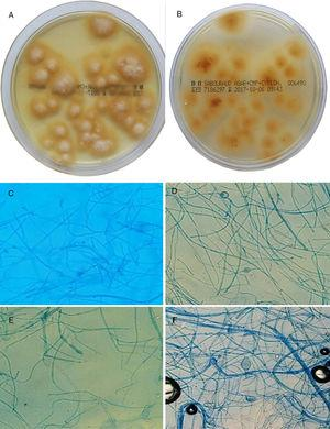A and B, Culture of hairs and scales in Sabouraud chloramphenicol actidione agar for 15 days at 28°C. Flat colonies with a stellate fringe, a woolly-white superficial mycelium (A), and a pale yellow-orange underside (B) are observed. C–F, Microscopic morphology after incubation for 7 days in potato dextrose agar: C, pectinate hyphae (comb-like structure); D, intercalary chlamydospores (original magnification ×20); E, macroconidium (original magnification ×20); F, terminal chlamydospores of M audouinii (original magnification ×20).