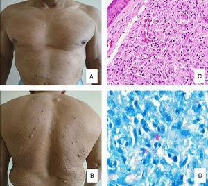 A y B. Nódulos color piel en el tronco y antebrazos. C. Atrofia epidérmica, zona de Grenz, y acúmulo circunscrito de histiocitos fusiformes en la dermis (H-E x40). D. Globus y bacilos ácido resistentes aislados (Wade-Fite stain x100).