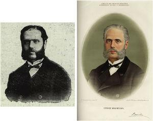 The photograph of José Eugenio de Olavide y Landazábal compared to plate IV illustrating disseminated canities.