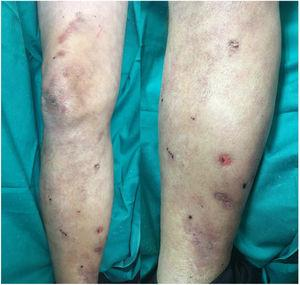 Resolution of necrotic lesions 15 days after discontinuing heparin treatment.