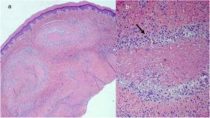 A, Panoramic image showing granulomas located in the deep dermis (hematoxylin-eosin, original magnification ×20). B, Detail of the same image showing granulomas composed of palisaded histiocytes (arrow) arranged around a central eosinophilic zone corresponding to fibrin (asterisk) (hematoxylin-eosin, original magnification ×100).