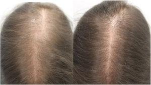A, Woman (aged 33 years) with female pattern hair loss before starting oral minoxidil treatment (1mg/d). B, Patient after 12 months of treatment.
