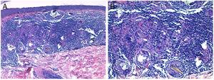 Histological images. A, Non-necrotizing granulomatous infiltrate in the superficial dermis (hematoxylin-eosin, original magnification ×10). B, Epithelioid histiocytes and birefringent crystalline material phagocytosed by multinucleated giant cells (hematoxylin-eosin, original magnification ×20).