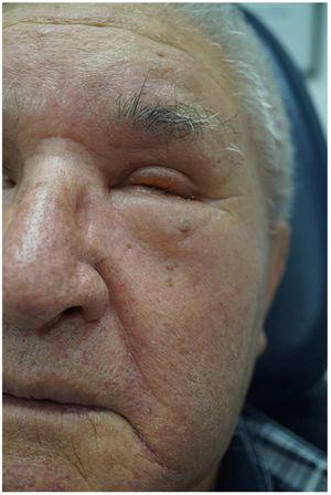 Facial pitting erythematous edema, predominantly on the left side.