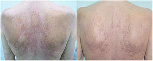 Xanthoma-like plaques on trunk, that had composed with the accumulation of yellow-orange papules on an erythematous background, and erythematous papules. Phototherapy resulted with healing of the erythematous papules, erosions and thinning of the yellow-orange plaques.