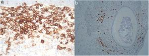 Immunohistochemistry showed CD1a (3a) and CD207 (3b) expression by the cells with eosinophilic cytoplasm and grooved or lobular nucleus.