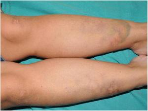Extensive purpuric lesion on the anterior aspect of the middle and distal third of the left leg, and reticulated erythematous-violaceous lesions on the contralateral leg. Note the presence of 2 atrophic scars on the distal third of the right leg and on the left knee.