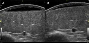 Ultrasound images of the left pretibial lesion (B-mode, 13-MHz probe). A, At the level of the ecchymotic area is an anechoic subcutaneous mass delimited by a thin pseudocapsule. B, Follow-up ultrasound 1 month later reveals a marked reduction in lesion thickness.